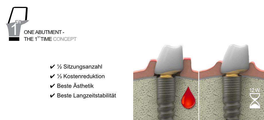 One Abutment - The 1st Time
